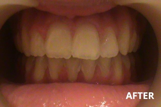 Orthoplus Smiles